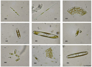 fresh-water phytoplankton, used to determine historic water ecology and nutrient levels (wiki)